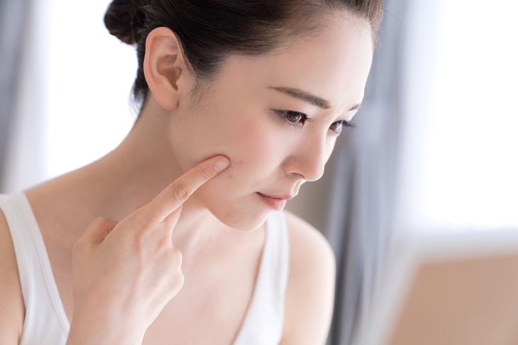 肌荒れに悩む女性のイメージ画像