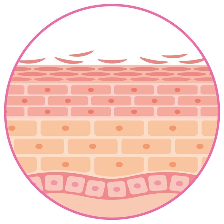 乾燥した肌の断面図