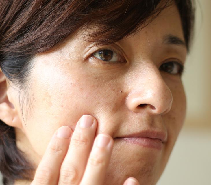 肌のくすみに悩む女性の画像