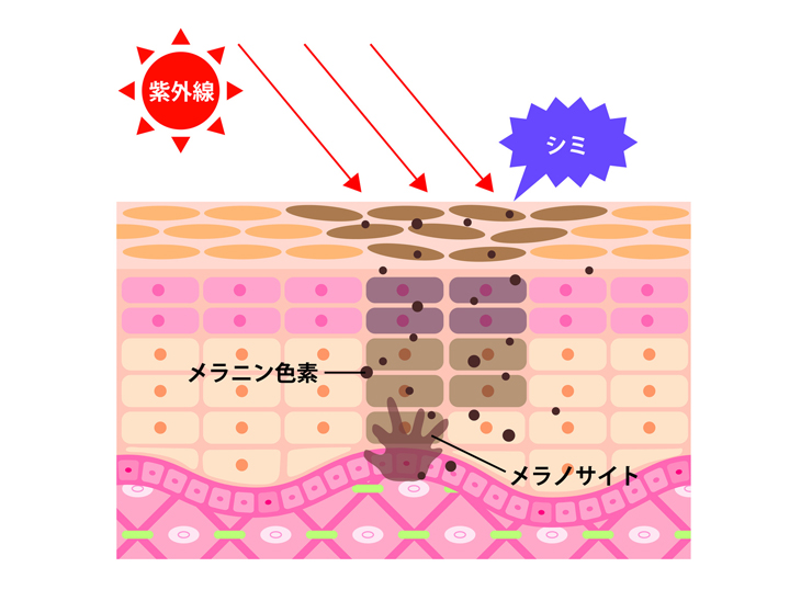シミができた皮膚の断面図