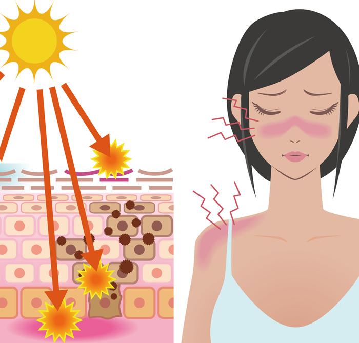 日焼けで肌がヒリヒリする女性の画像